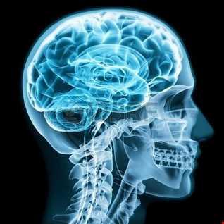 Brain Stem 2